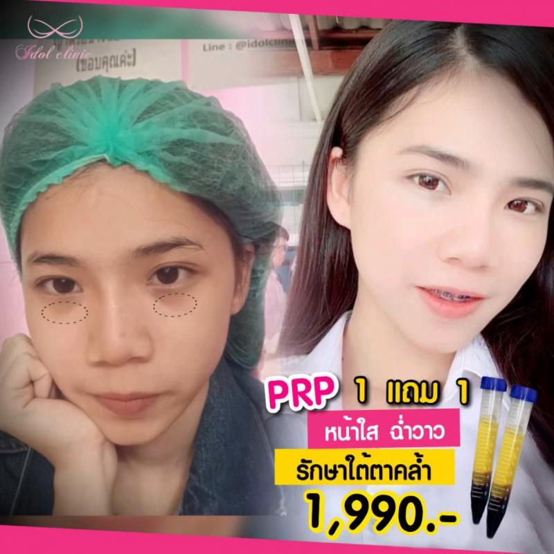PRP_200102_0001