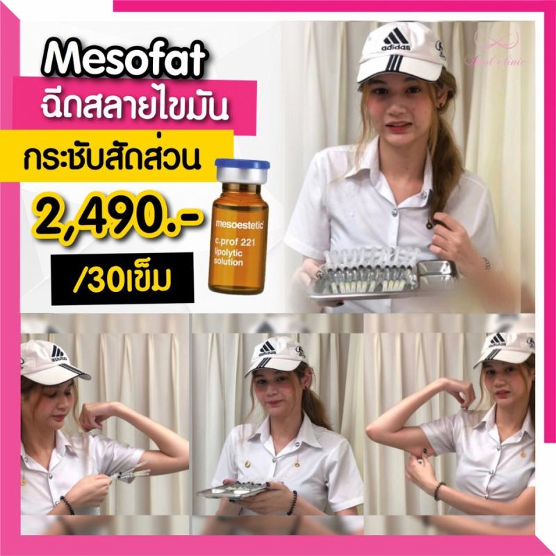 เมโสแฟต_200102_0031