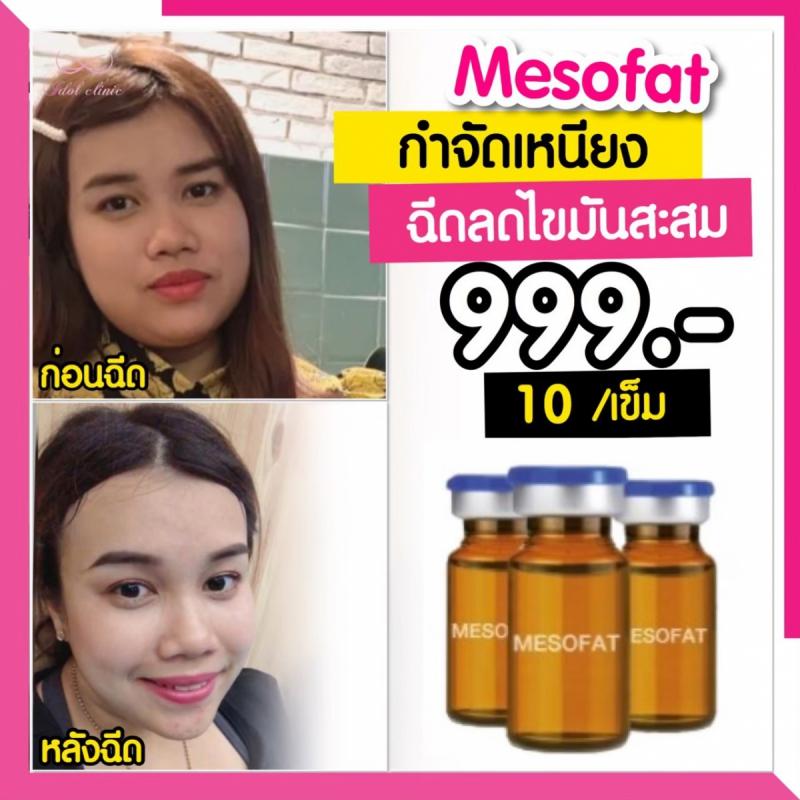 เมโสแฟต_200102_0041
