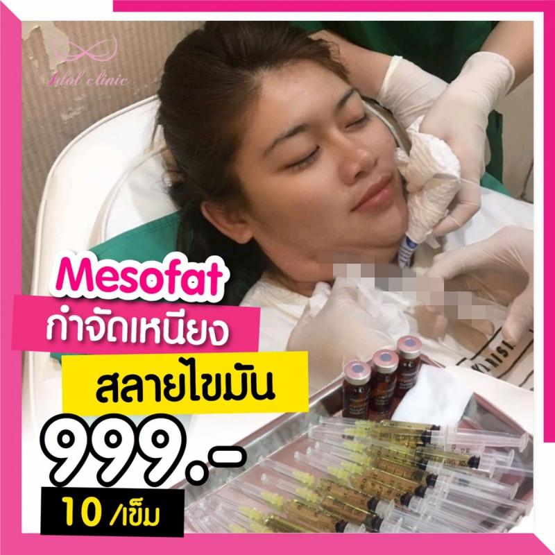 เมโสแฟต_200102_0043