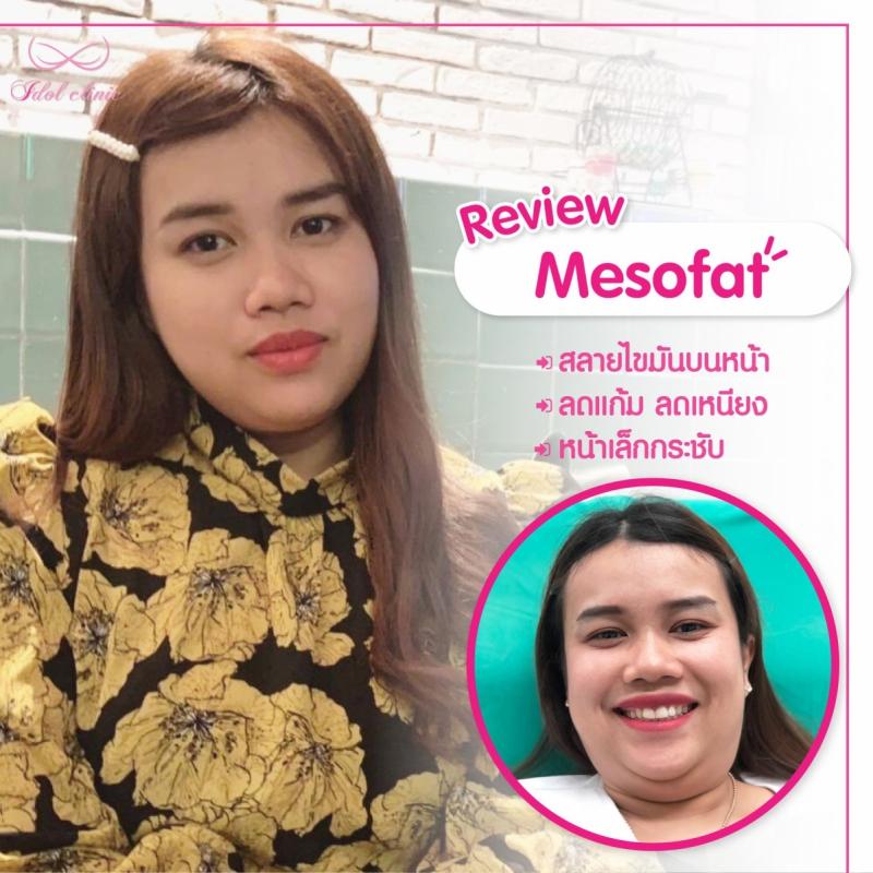 mesofat1