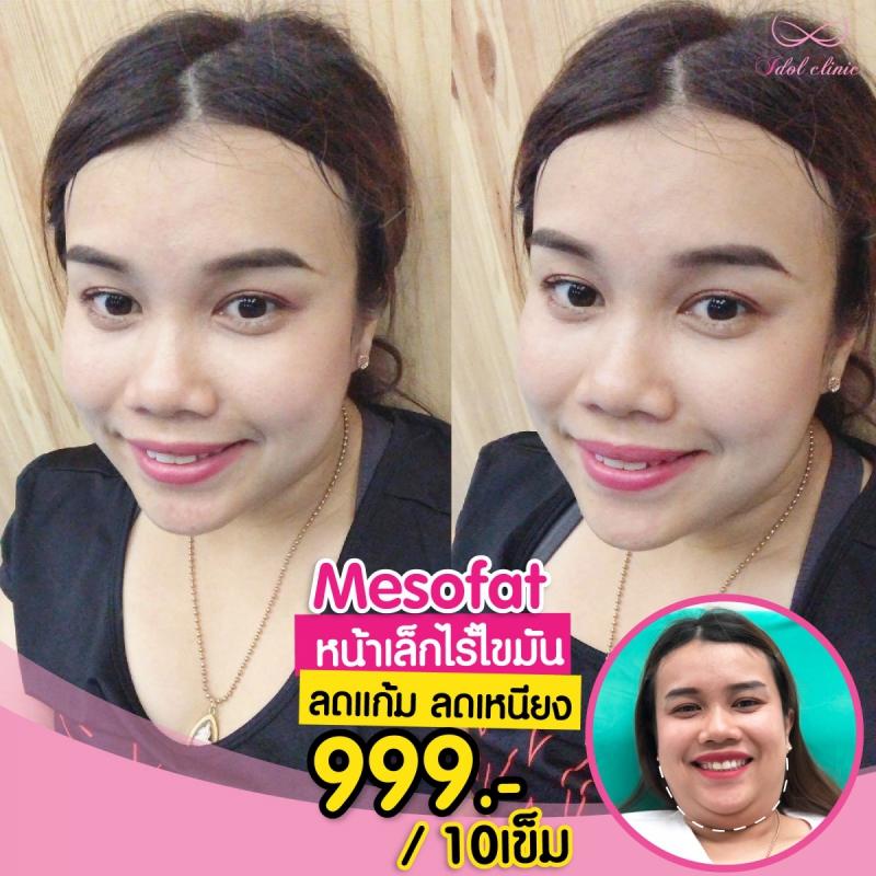 mesofat2