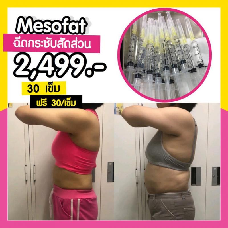 mesofat5