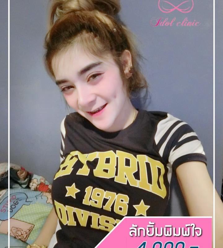 ลักยิ้ม_200102_0002