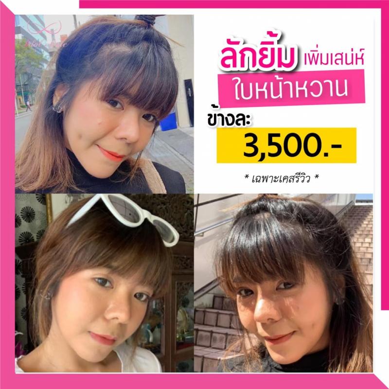 ลักยิ้ม_200102_0008