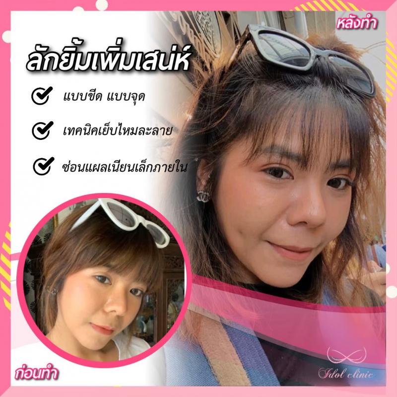 ลักยิ้ม_200102_0009